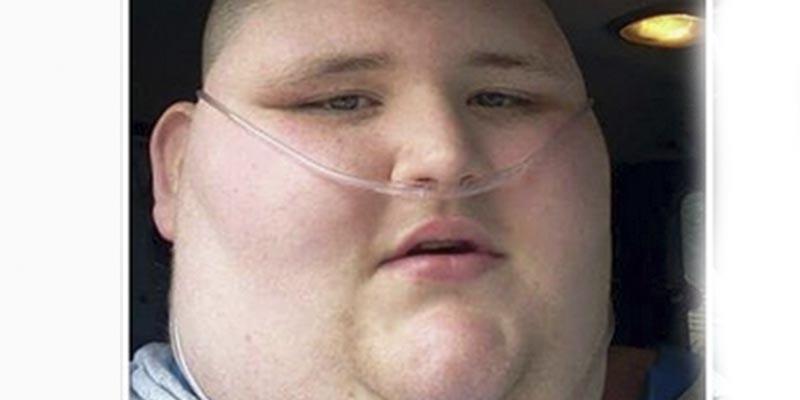 Este chico pierde 270 kilos en tres años cuando se entera que le quedan seis meses de vida
