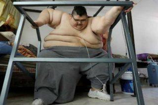 La desesperada batalla del hombre más gordo del mundo por adelgazar y volver a caminar