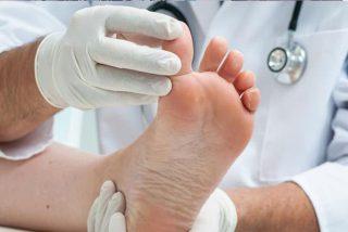 ¿Sabes por qué el pie de atleta afecta más a los deportistas?