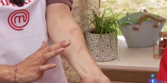Tamara Falcó da un gran susto al quemarse los brazos durante la prueba de exteriores de MasterChef Celebrity
