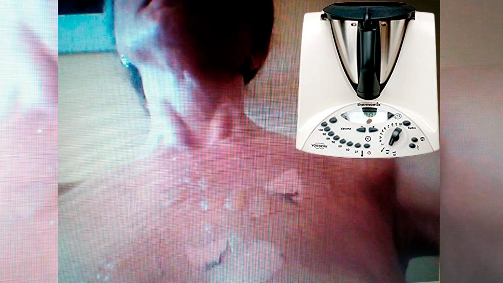 Marcelina ha ganado su batalla legal contra Thermomix: se quemó tras estallarle la tapa y le pagan 24.000€