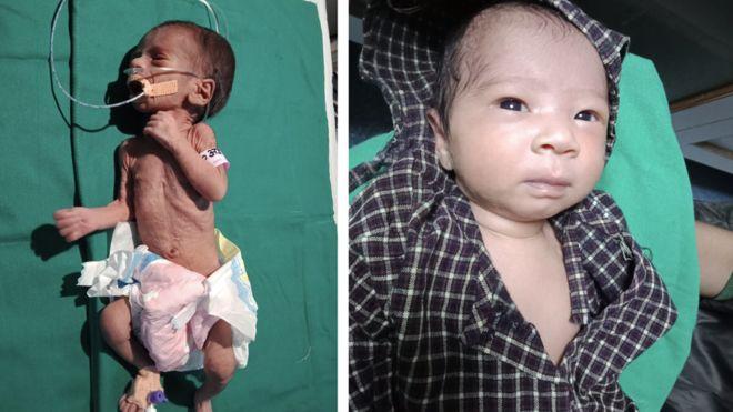 Esta bebé prematura fue enterrada viva en la India y tras ser rescatada recuperó su salud