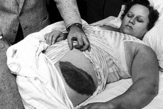 La sorprendente historia de la única persona herida por un meteorito