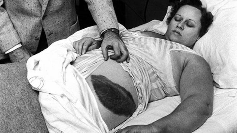 La abracadabrante historia de la única persona herida por un meteorito