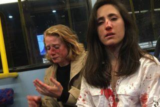 La Policía publica el video del ataque que sufrió una pareja de lesbianas en un autobús de Londres