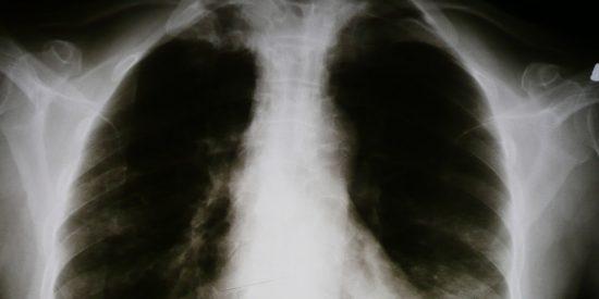 Google logra enseñar a la IA a diagnosticar condiciones pulmonares con la precisión de un médico especialista humano