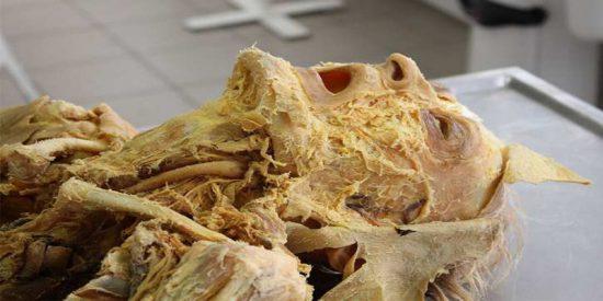 ¿Es verdad que los antibióticos y conservantes de los alimentos provocan que los cadáveres tarden en descomponerse?
