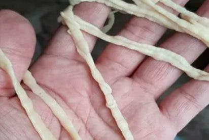 ¡Un hombre se saca un gusano de casi 10 metros del ano!