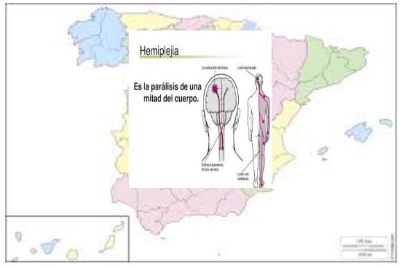 "Manuel del Rosal: ""La España Hemipléjica"""