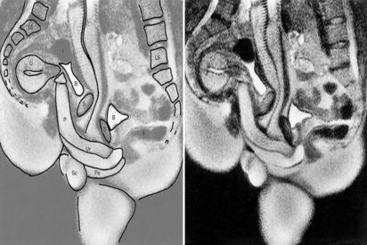 'British Medical Journal': el scanner del coito y la excitación que arrasa entre los lectores