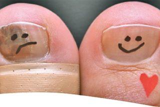 Cuatro tipos de lazada para las diferentes necesidades de los runners ¡Fuera uñas negras!