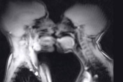 'British Medical Journal': Este scanner de un coito con calentón es el artículo más visto de la historia de la revista científica