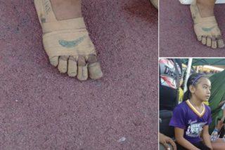 Esta niña usa 'zapatillas' para correr hechas con vendajes y gana tres medallas de oro