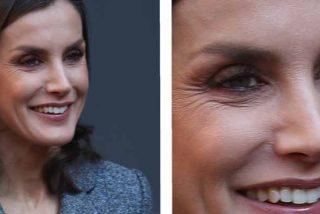 Casa Real prohíbe a Doña Letizia 'pasar por quirófano' y provoca un terremoto en la Familia Real