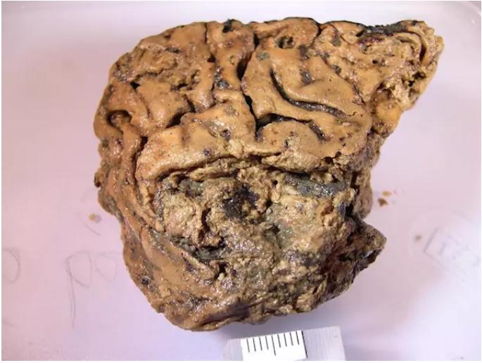 Los secretos del cerebro humano 'momificado' en lodo durante 2.600 años