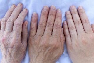 Artrosis: la combinación estos dos medicamentos puede curar el mal que afecta a 7 millones de españoles
