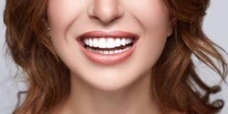 tratamientos de blanqueamiento dental Amazon