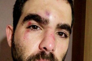 Barcelona: la brutal paliza a un periodista de Onda Cero en la ciudad sin ley de Ada Colau
