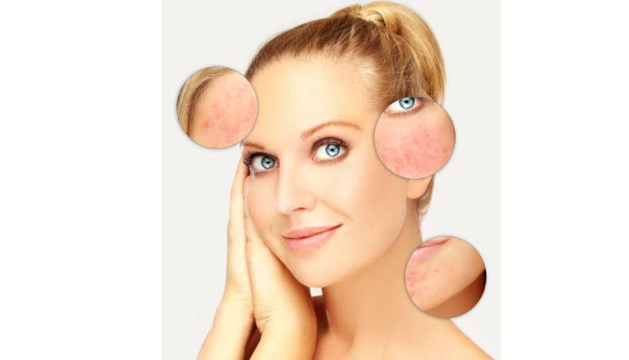 Cómo maquillar pieles con rosácea