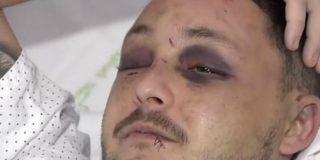 Murcia: agrede a su pareja menor de edad y al hombre que intentó auxiliarla