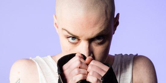 Calvas: el pelo fino y las causas de la alopecia en las mujeres