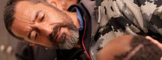 Muere en el avión que le llevaba a casa, el niño al que el doctor Cavadas extirpó un tumor más grande que su cabeza