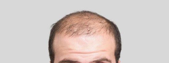 Calvicie: Los genes que predicen la alopecia