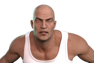 Calvicie: la alopecia masculina es un indicio de riesgo cardíaco