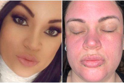 Belleza: Una joven denuncia que esta crema facial del supermercado a 4 euros el bote le ha destrozado la cara
