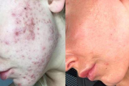 Una doctora halla el tratamiento definitivo contra el acné y sus marcas