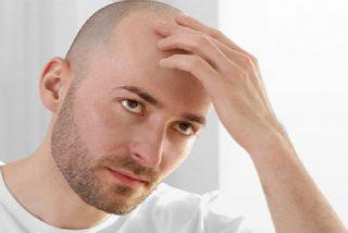 Calvicie: el error de afeitarse la cabeza para no quedarse calvo y otros mitos sobre la caída del pelo