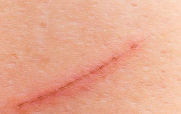 la vitamina C ayuda a cicatrizar heridas