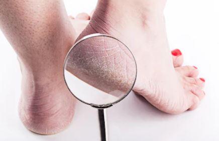Mejores productos para durezas en los pies