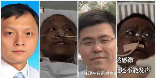 ¡De locos! Así cambió el color de la piel de dos médicos chinos que se contagiaron de coronavirus