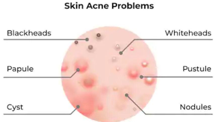 manifestaciones del acné