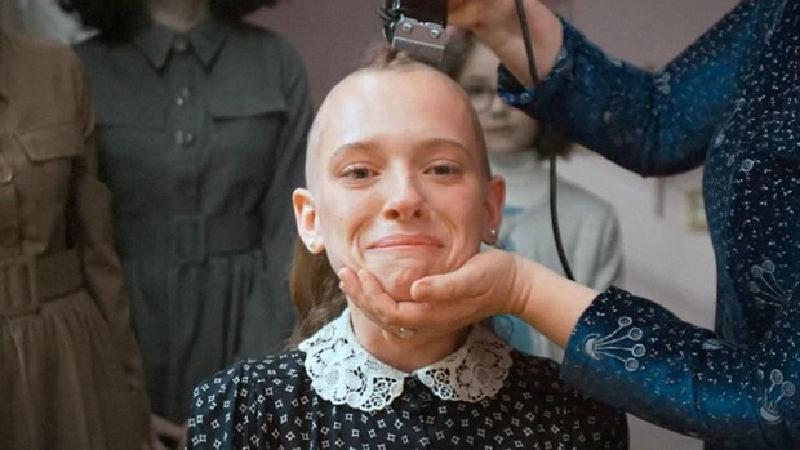 Calvicie: ¿Es bueno raparse la cabeza para que crezca mejor y no se caiga el pelo?
