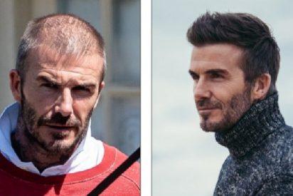 ¿Se está quedando calvo como una pelota el bello David Beckham?