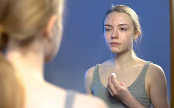 Cómo cuidar la piel en la adolescencia