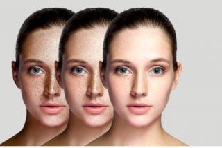 Maquillaje para piel con pecas
