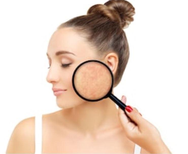 marcas del acné