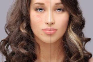 Cómo reducir las marcas del acné