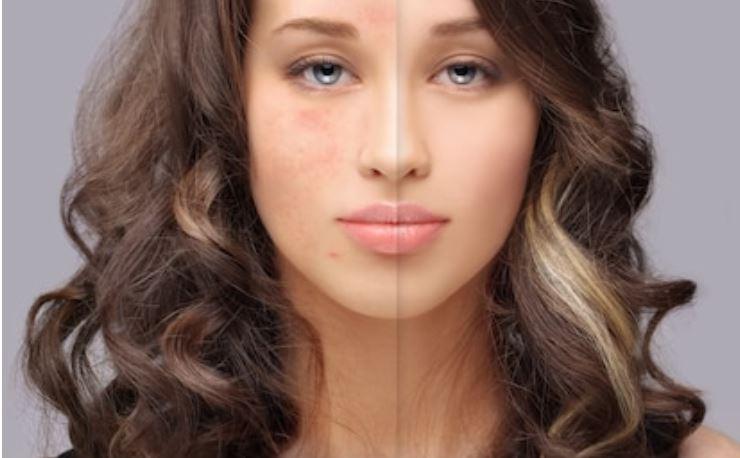 brotes de acné