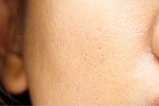Poros dilatados