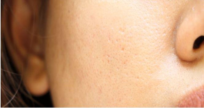 poros piel grasa