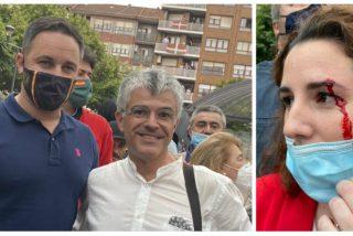Salvaje agresión contra VOX en un mitin en el País Vasco: parten la ceja de una pedrada a Rocío de Meer y amenazan de muerte a Abascal
