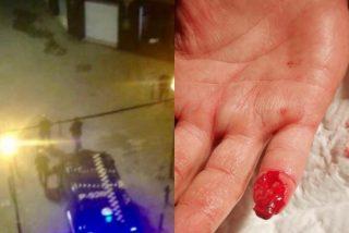 Barcelona: un ladrón arranca de un mordisco el dedo a un agente de la Guardia Urbana