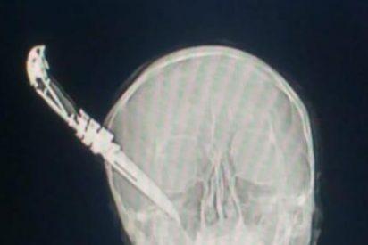 Un facineroso clava un cuchillo en la cabeza a un hombre de 60 años que solo pretendía evitar el robo de una bici