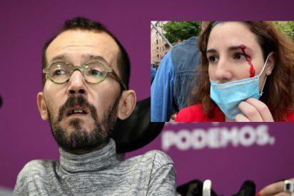 Echenique, obsesionado con el rol de 'víctima': lloriquea por verse como 'diana', pero se ofusca en negar la agresión a una diputada de VOX
