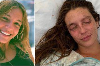 El sobrecogedor grito de auxilio de Marta Bustos tras sufrir un accidente fatal: ayudémosla entre todos a que recupere sus ojos