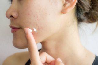 ¿Funciona la pasta de dientes para las espinillas?